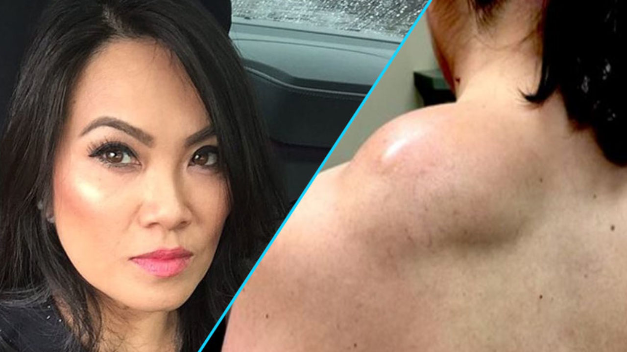 Tlc Is Hosting A Dr Pimple Popper Holiday Special